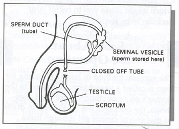 Illustration showing the location of the sperm duct (tube), seminal vesicle (where sperm is stored), the closed off tube of a vasectomy, the testicle, and the scrotum.